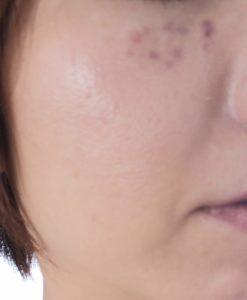 皮膚科のシミ取りレーザー照射2時間後