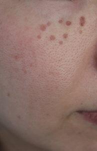 皮膚科のシミ取りレーザー照射3日後